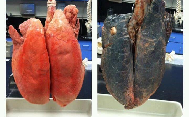 La libération de la dépendance de nicotine par lhypnose les rappels