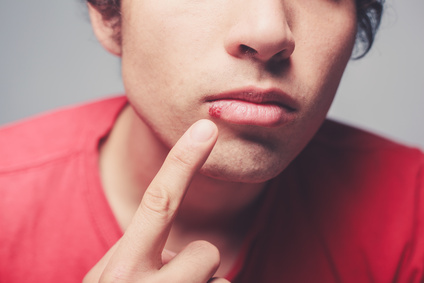 Young man is showing a cold sore on his lip