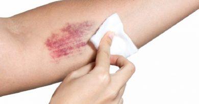 bruise-FI02-759x419