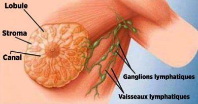 buvez-jours-ignorez-quil-cause-principale-cancer-sein