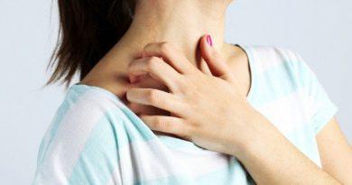 mujer-rascandose-reaccion-de-la-piel-601x400