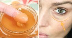 miel-cernes-yeux