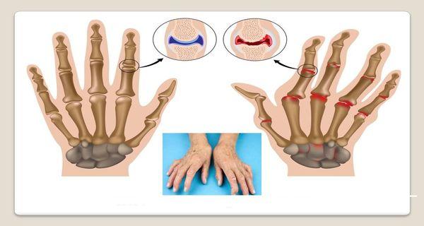 soulager les douleurs de l arthrite dans les mains avec 8 exercices. Black Bedroom Furniture Sets. Home Design Ideas